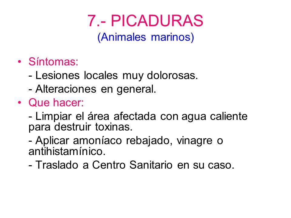 7.- PICADURAS (Animales marinos)