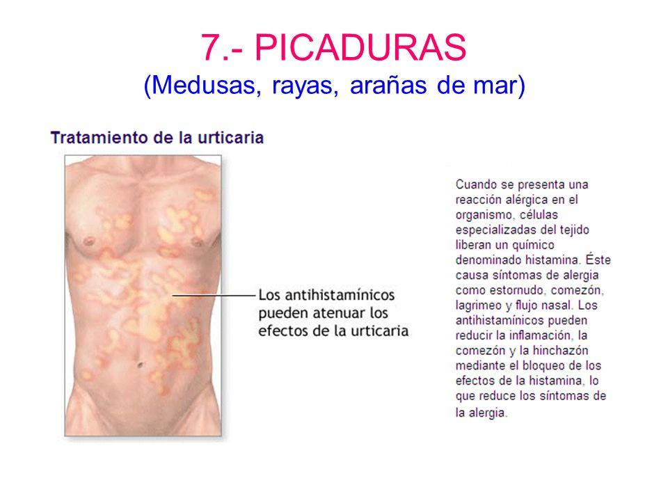 7.- PICADURAS (Medusas, rayas, arañas de mar)