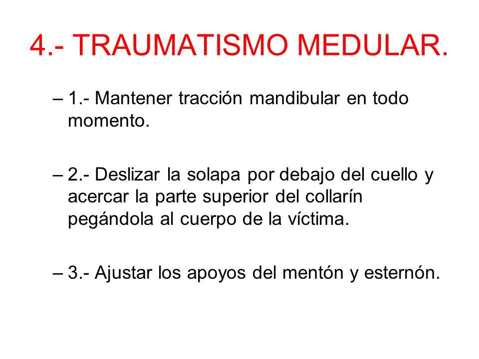4.- TRAUMATISMO MEDULAR. 1.- Mantener tracción mandibular en todo momento.