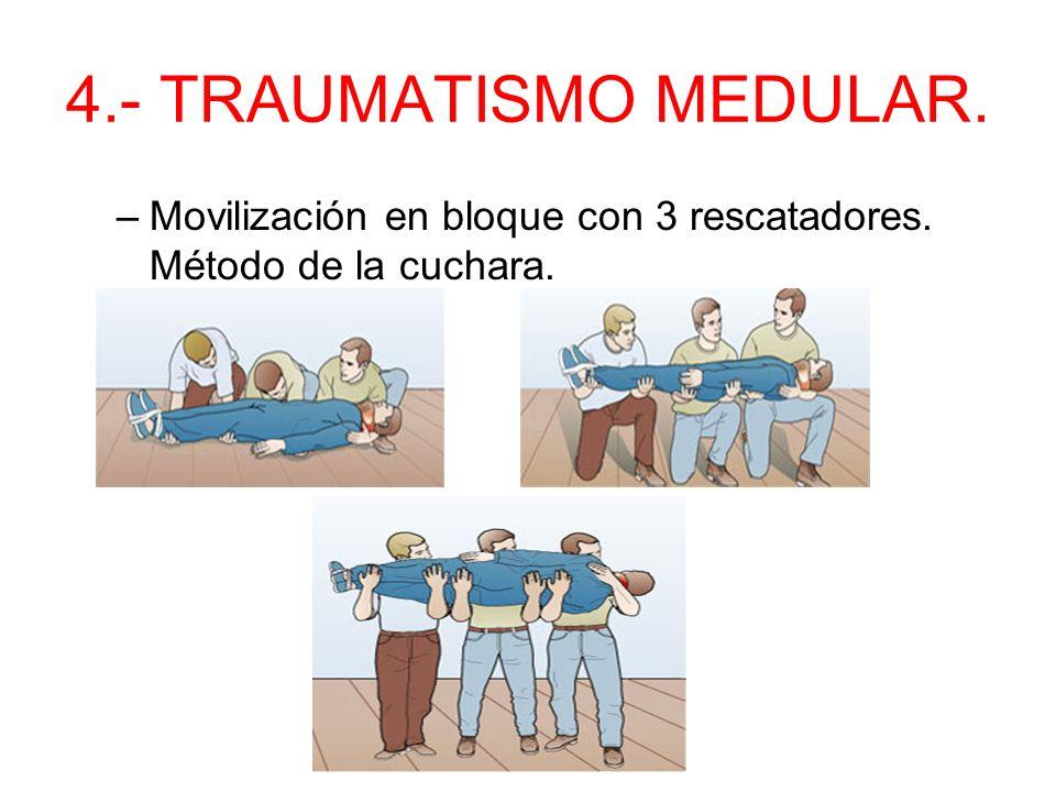 4.- TRAUMATISMO MEDULAR. Movilización en bloque con 3 rescatadores. Método de la cuchara.