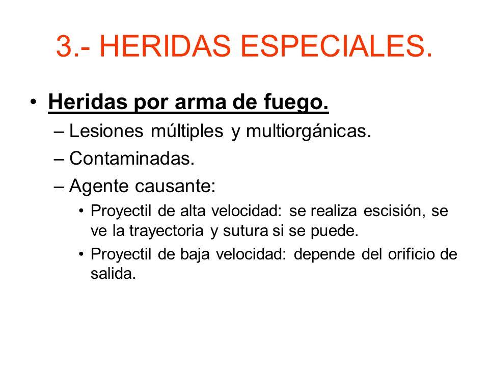 3.- HERIDAS ESPECIALES. Heridas por arma de fuego.