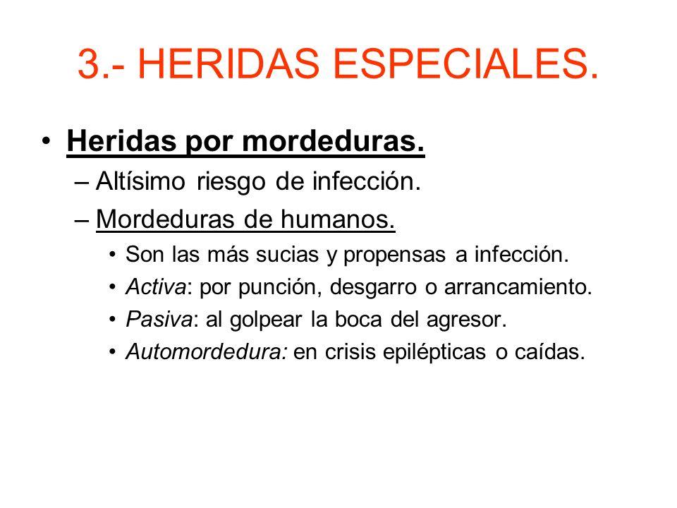 3.- HERIDAS ESPECIALES. Heridas por mordeduras.