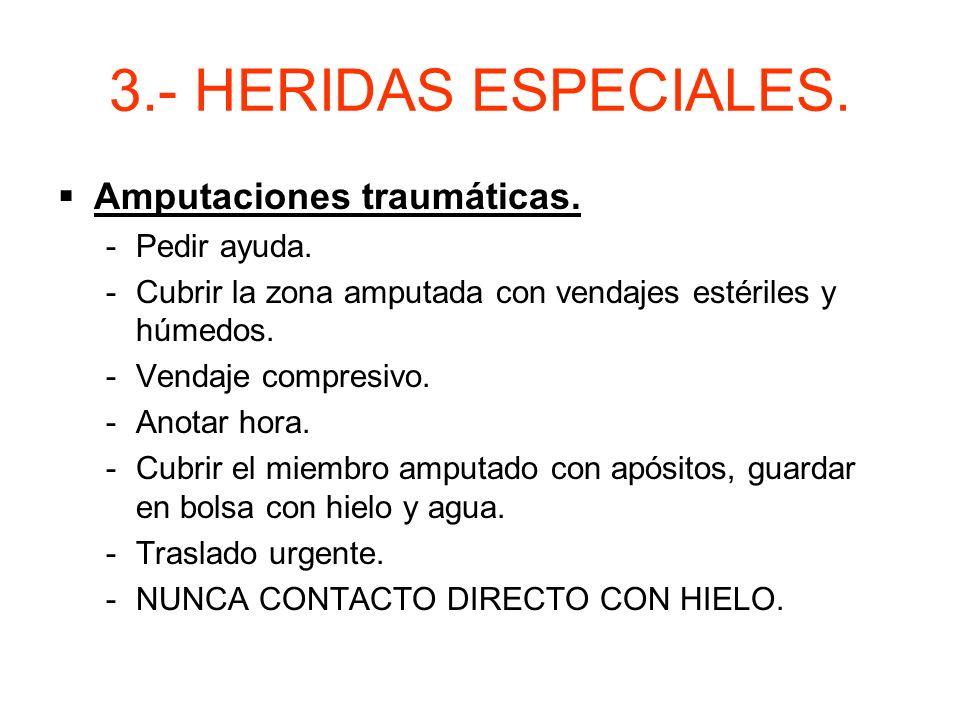3.- HERIDAS ESPECIALES. Amputaciones traumáticas. Pedir ayuda.