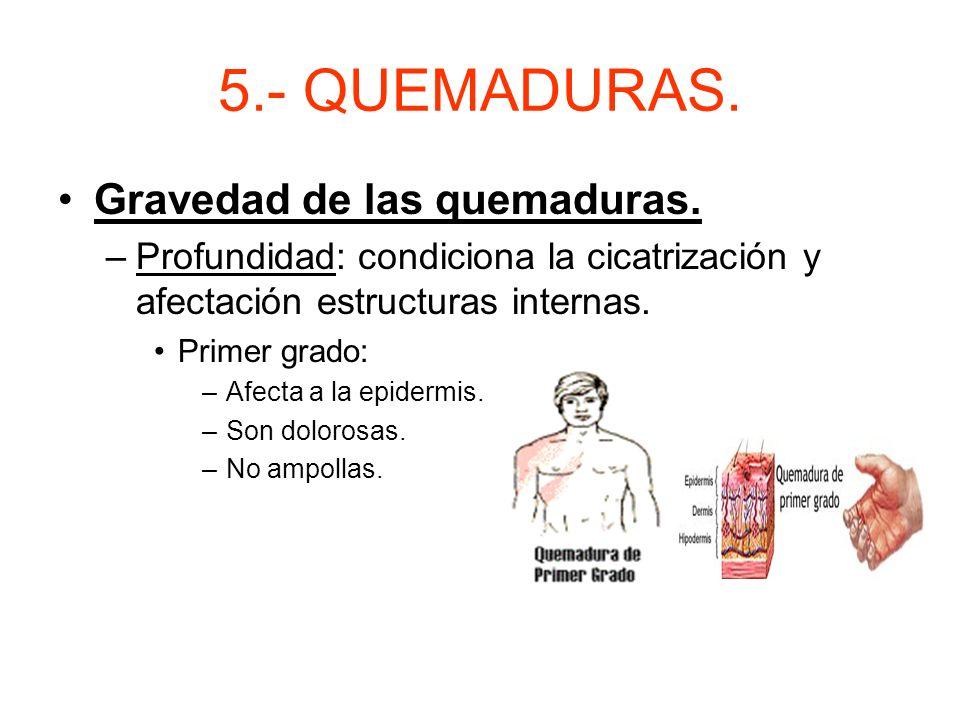 5.- QUEMADURAS. Gravedad de las quemaduras.