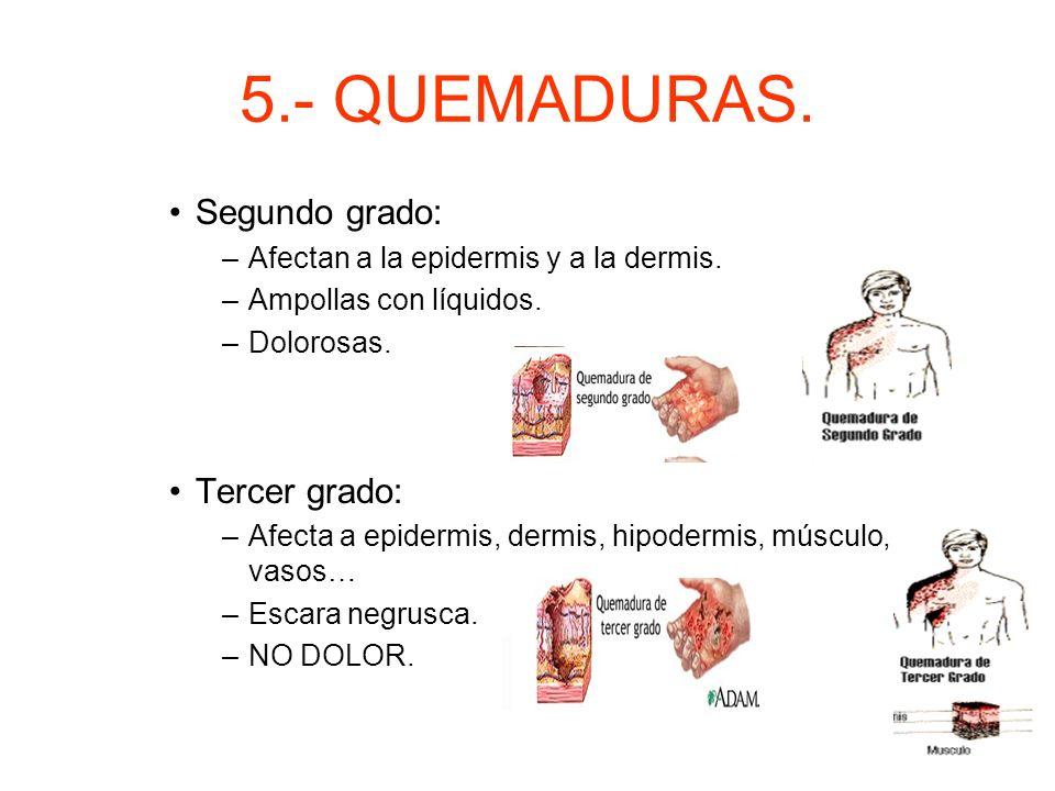 5.- QUEMADURAS. Segundo grado: Tercer grado:
