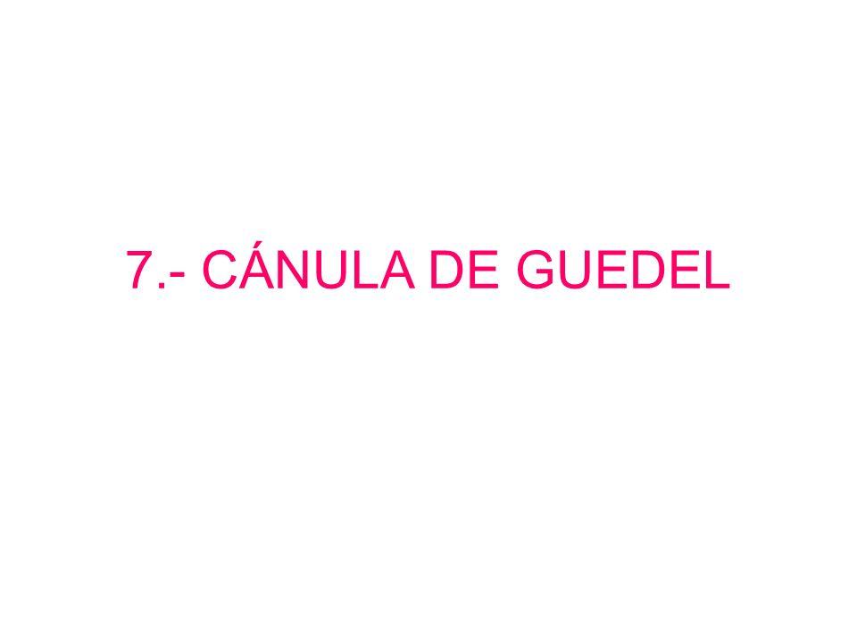 7.- CÁNULA DE GUEDEL