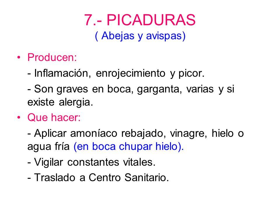 7.- PICADURAS ( Abejas y avispas)