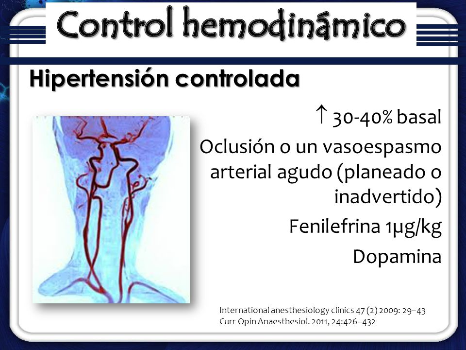 Control hemodinámico Hipertensión controlada