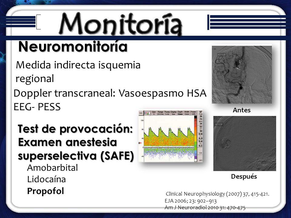 Monitoría Neuromonitoría Medida indirecta isquemia regional