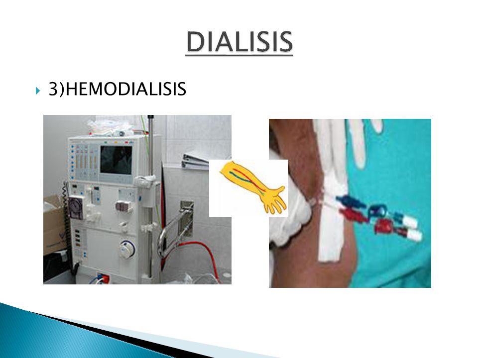 DIALISIS 3)HEMODIALISIS