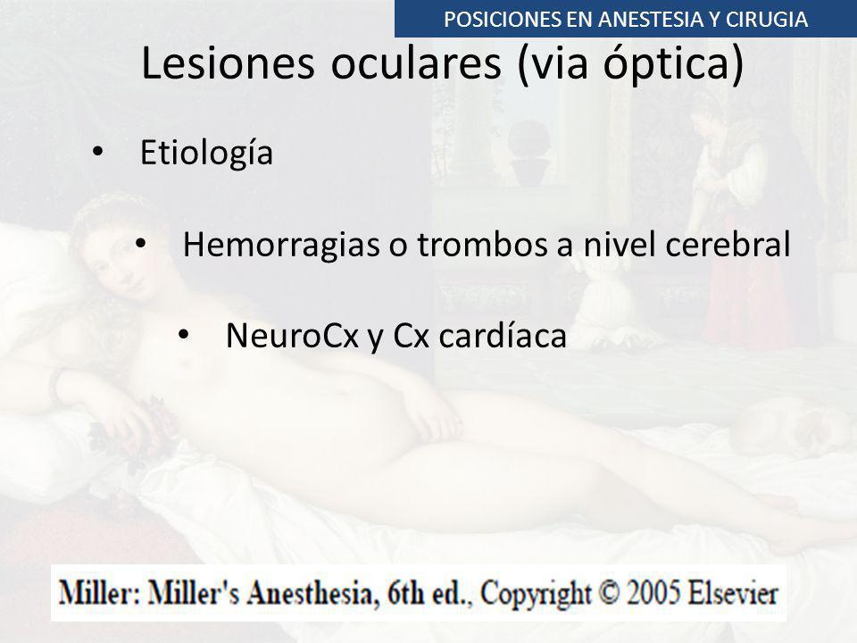 Lesiones oculares (via óptica)