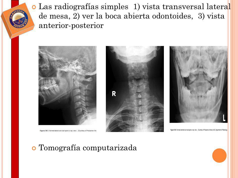 Las radiografías simples 1) vista transversal lateral de mesa, 2) ver la boca abierta odontoides, 3) vista anterior-posterior