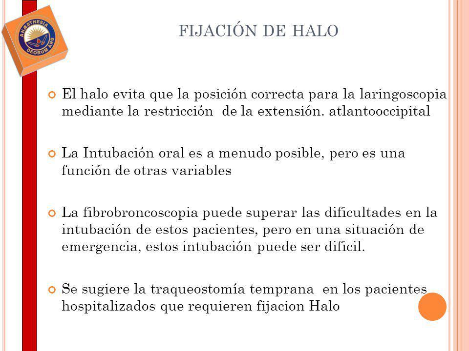 fijación de halo El halo evita que la posición correcta para la laringoscopia mediante la restricción de la extensión. atlantooccipital.