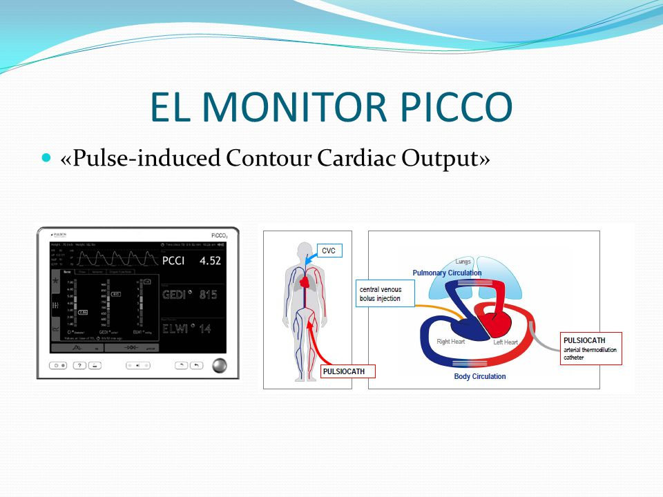 EL MONITOR PICCO «Pulse-induced Contour Cardiac Output»
