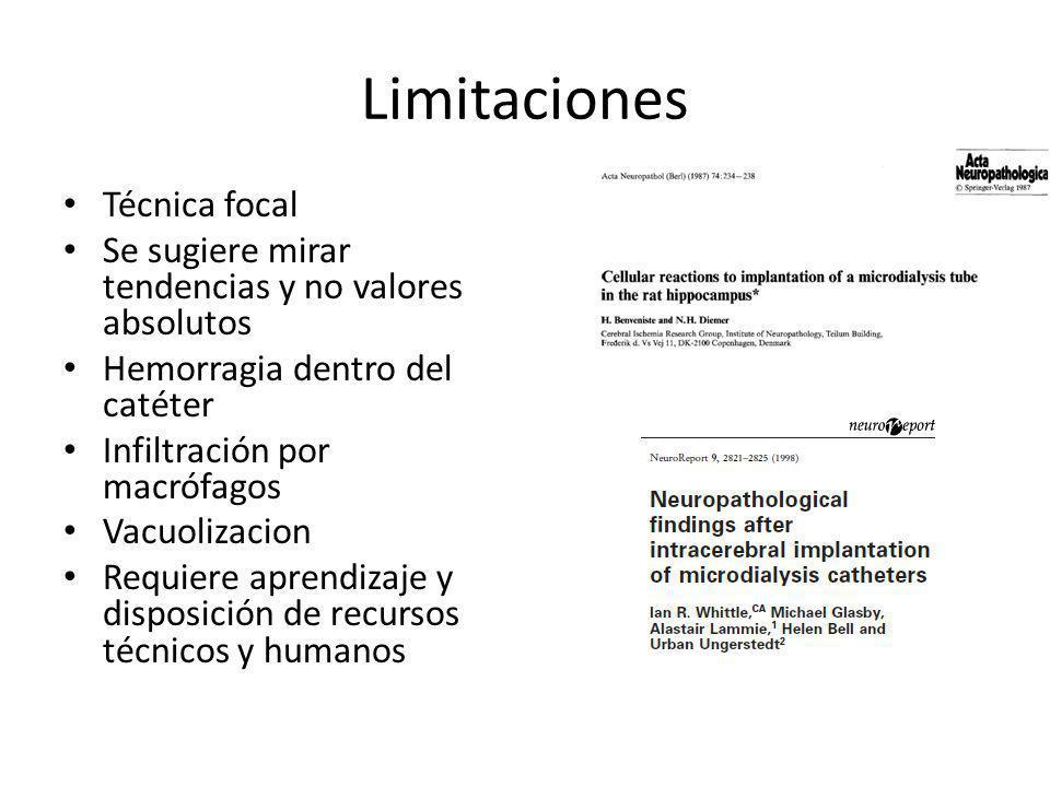 Limitaciones Técnica focal