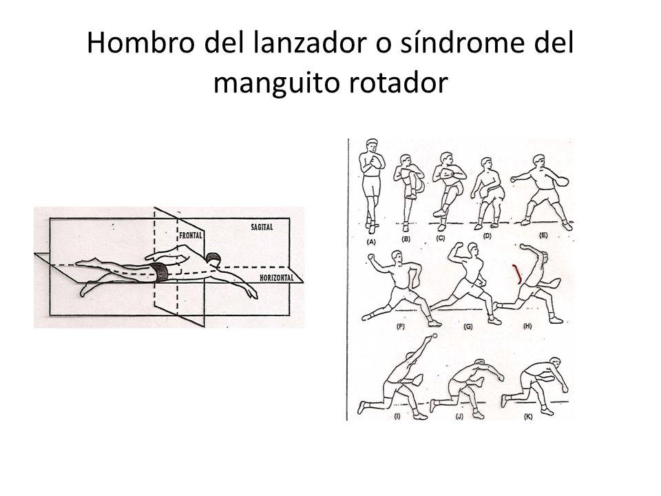 Hombro del lanzador o síndrome del manguito rotador