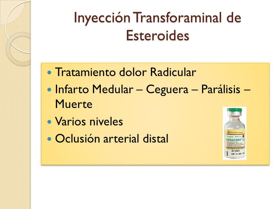 Inyección Transforaminal de Esteroides