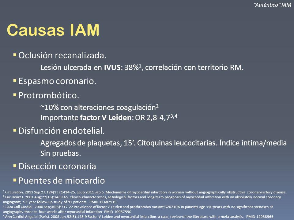 Auténtico IAM Causas IAM. Oclusión recanalizada. Lesión ulcerada en IVUS: 38%1, correlación con territorio RM.