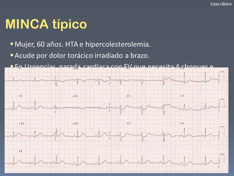 MINCA típico Mujer, 60 años. HTA e hipercolesterolemia.