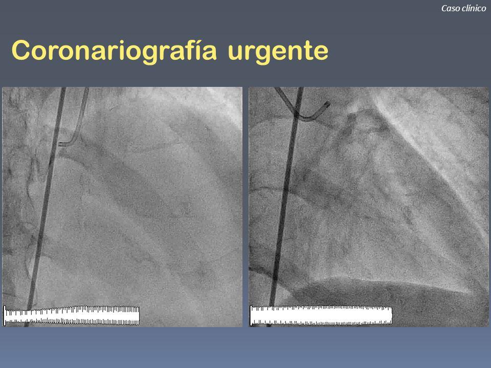 Coronariografía urgente