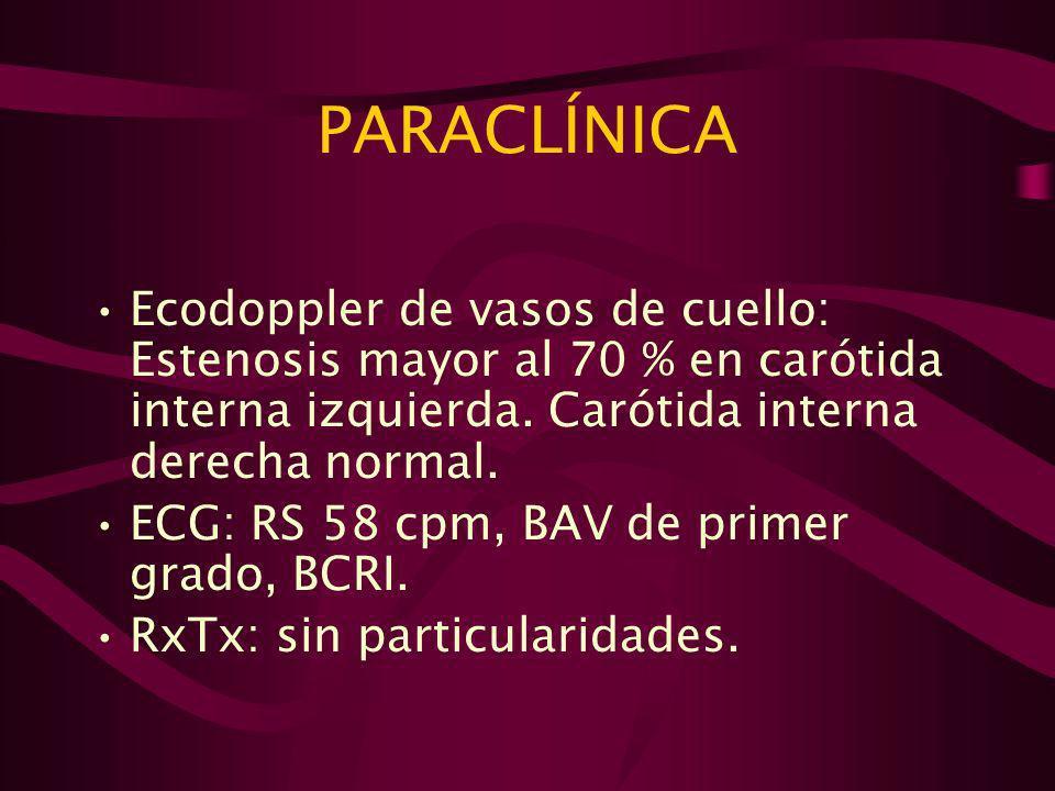 PARACLÍNICA Ecodoppler de vasos de cuello: Estenosis mayor al 70 % en carótida interna izquierda. Carótida interna derecha normal.