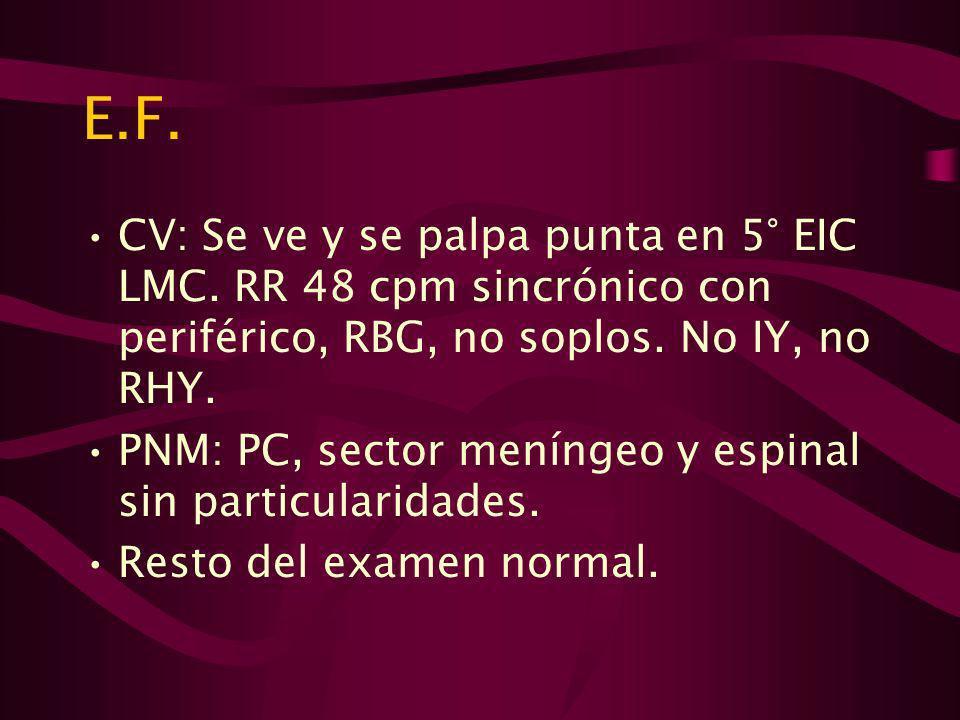 E.F. CV: Se ve y se palpa punta en 5° EIC LMC. RR 48 cpm sincrónico con periférico, RBG, no soplos. No IY, no RHY.