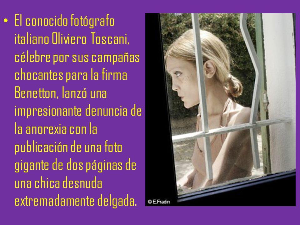 El conocido fotógrafo italiano Oliviero Toscani, célebre por sus campañas chocantes para la firma Benetton, lanzó una impresionante denuncia de la anorexia con la publicación de una foto gigante de dos páginas de una chica desnuda extremadamente delgada.