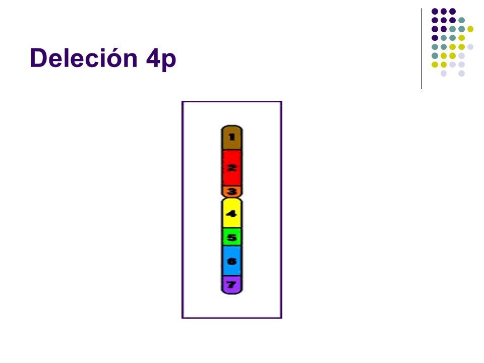 Deleción 4p