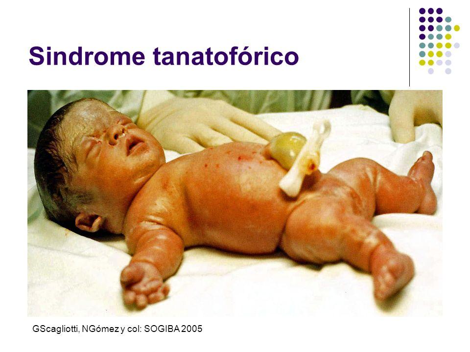 Sindrome tanatofórico