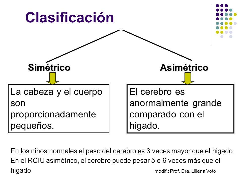 Clasificación Simétrico Asimétrico