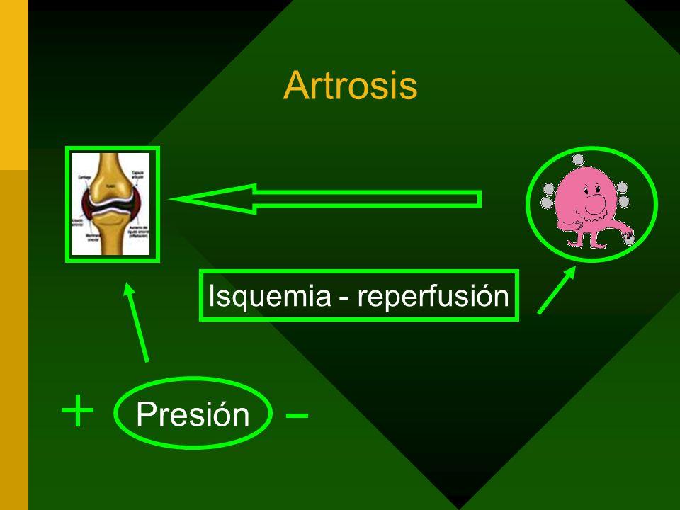 Isquemia - reperfusión