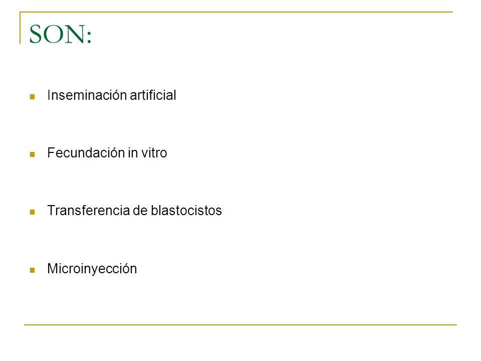 SON: Inseminación artificial Fecundación in vitro