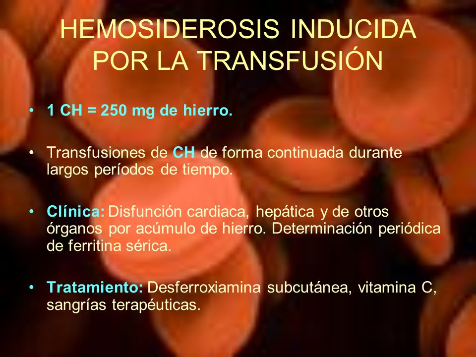 HEMOSIDEROSIS INDUCIDA POR LA TRANSFUSIÓN