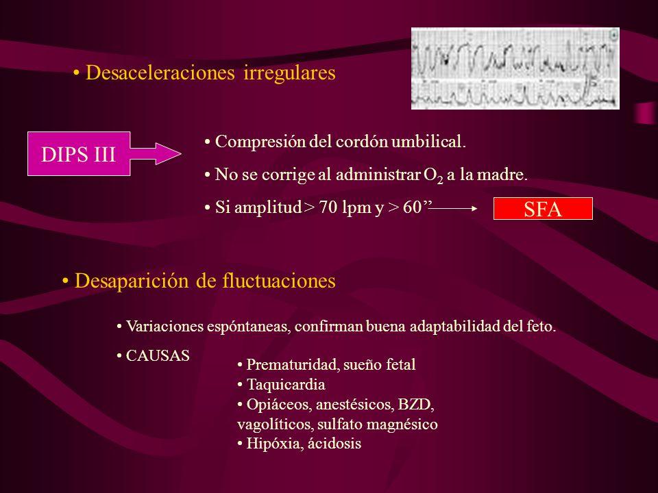 Desaceleraciones irregulares