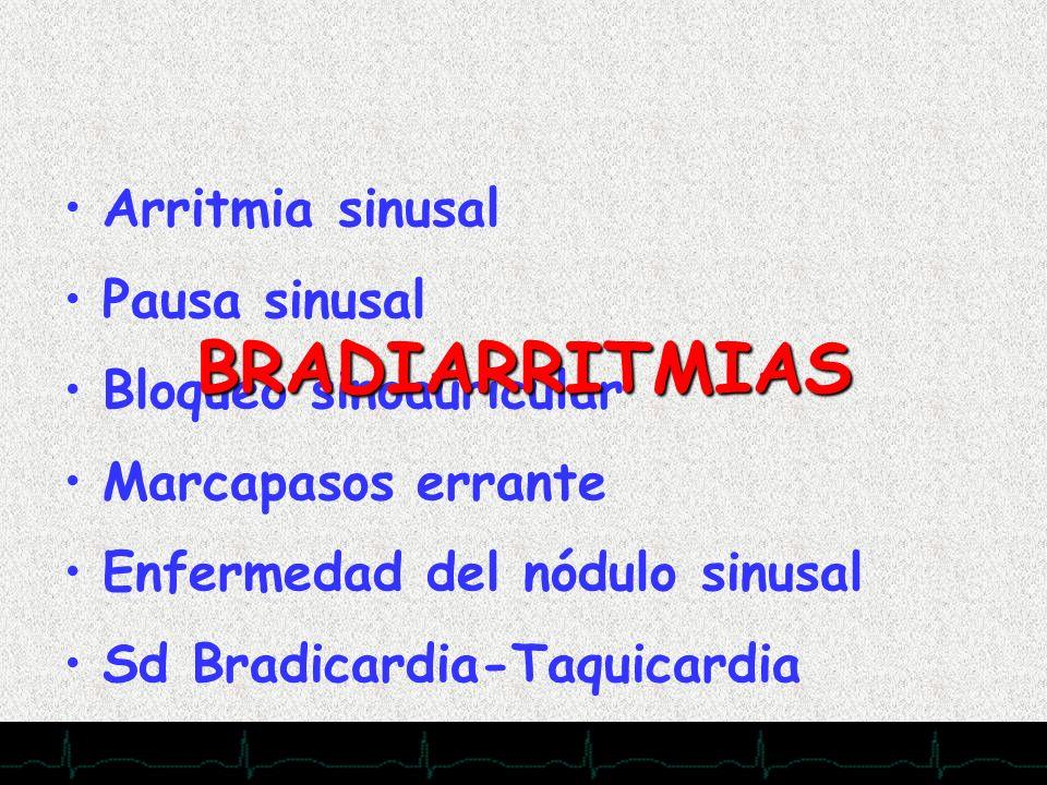BRADIARRITMIAS Arritmia sinusal Pausa sinusal Bloqueo sinoauricular