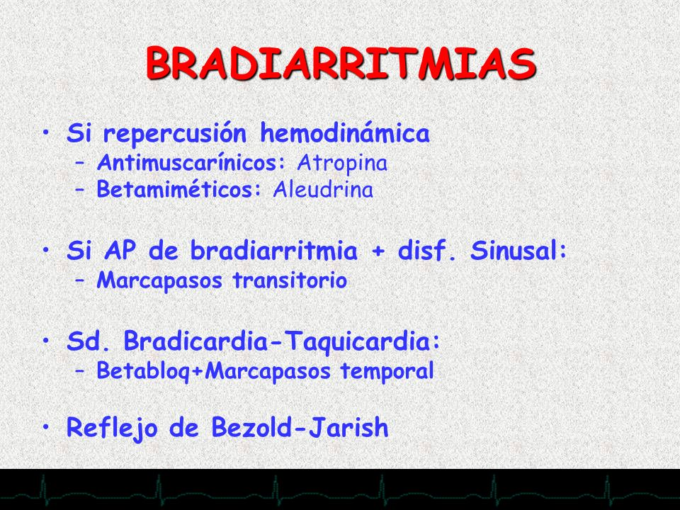 BRADIARRITMIAS Si repercusión hemodinámica