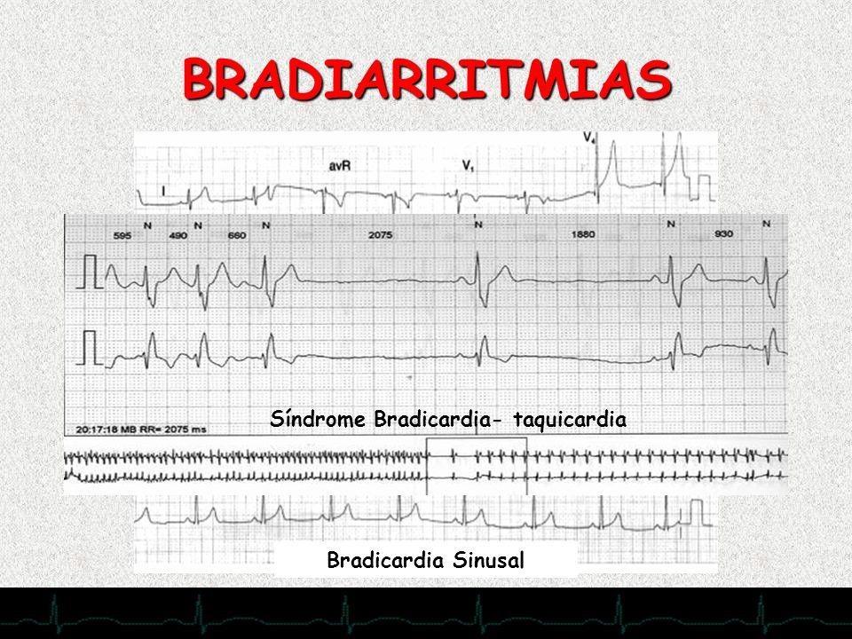Síndrome Bradicardia- taquicardia