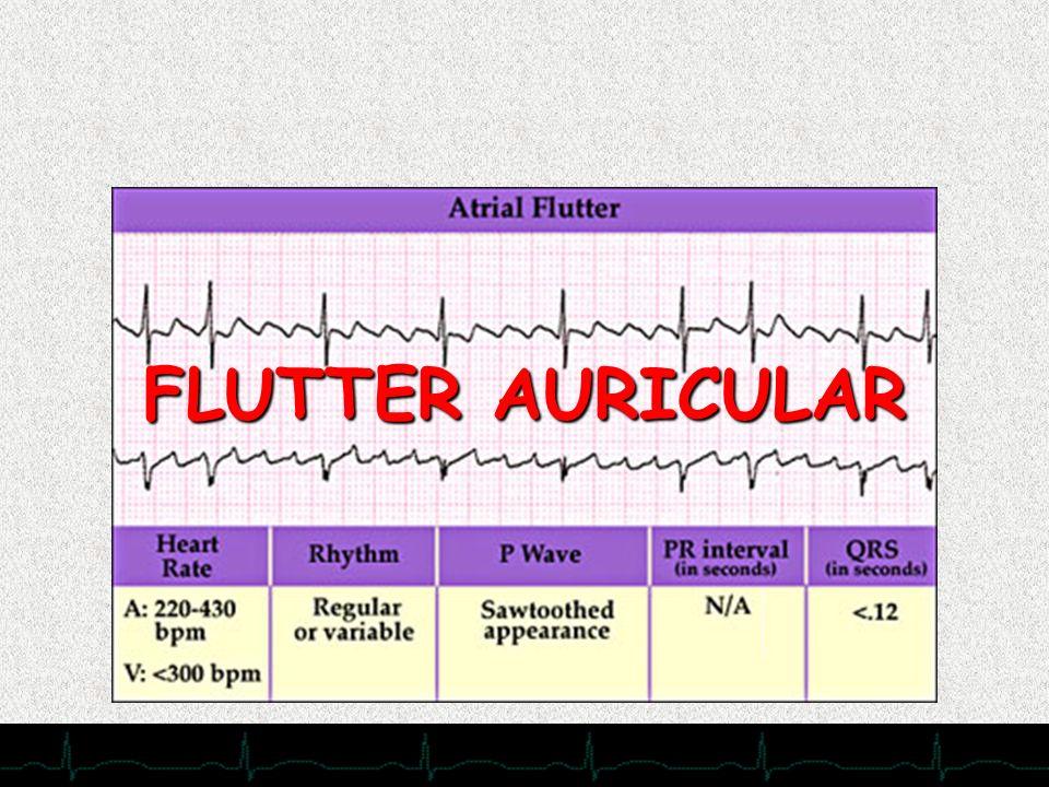 FLUTTER AURICULAR 28/11/2007 Menos frecuente que la FA