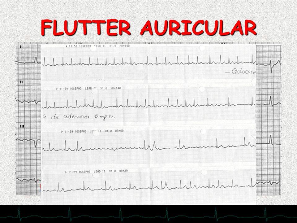 FLUTTER AURICULAR 28/11/2007
