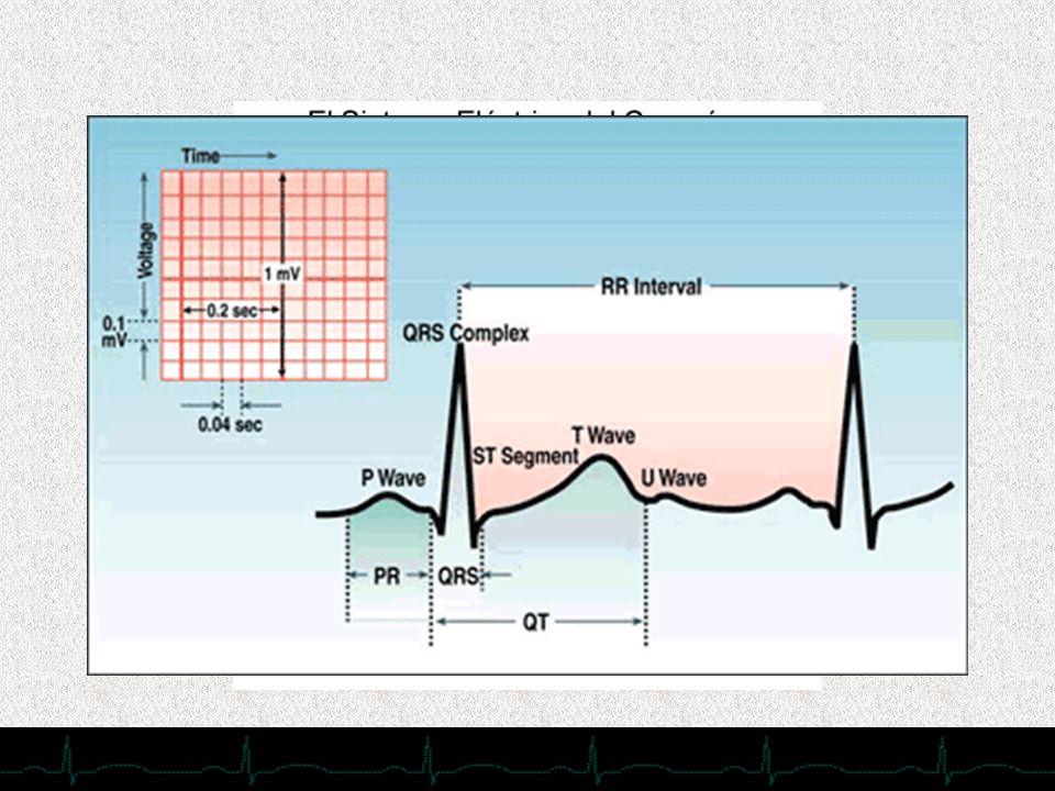 En cuanto a la electrofisiología cardiaca no voy a comentar nada, pues creo que es por todos conocida, simplemente recordar……………………..La transmisión normal de la actividad eléctrica del corazón se inicia en el nódulo sinoatrial (o nódulo sinusal), y más tarde se transmite a la aurícula para converger en el nódulo auriculoventricular. La activación atrial se cumple en unos 100 mseg. Acto seguido se produce un intervalo de conducción a través del nódulo auriculoventricular, que también dura alrededor de 100 mseg (intervalo PR). Este período se alarga con la estimulación vagal, y se acorta con la actividad simpática. La activación ventricular comienza entonces por la cara izquierda del tabique interventricular, y después alcanza la cara derecha a partir del centro del tabique. El impulso atraviesa luego la red de Purkinje, para alcanzar la punta del corazón y despolarizar las paredes de los ventrículos izquierdo y derecho, desde el endocardio hasta el epicardio. Este proceso activará ambos ventrículos en 80-100 mseg. Las últimas regiones en despolarizarse son la posterobasal del ventrículo izquierdo, el cono arterioso y la parte superior del tabique interventricular.