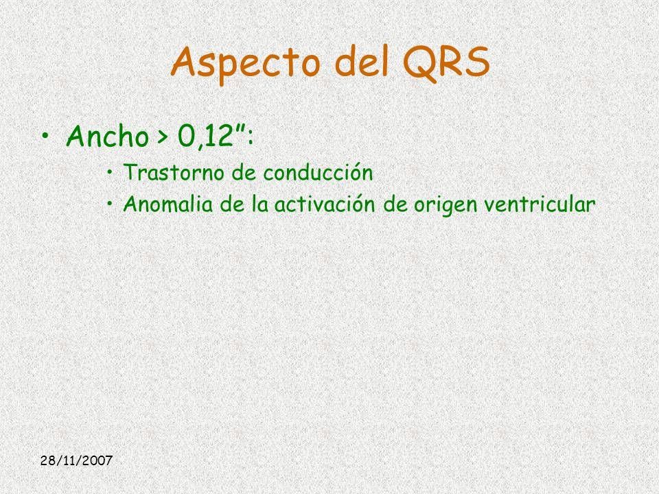 Aspecto del QRS Ancho > 0,12 : Trastorno de conducción