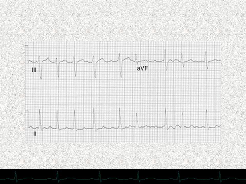 Fibrilación auricular con frecuencia ventricular de alrededor de 150 lpm. Obsérvese el temblor de la línea de base isoeléctrica y la irregularidad de los complejos QRS.