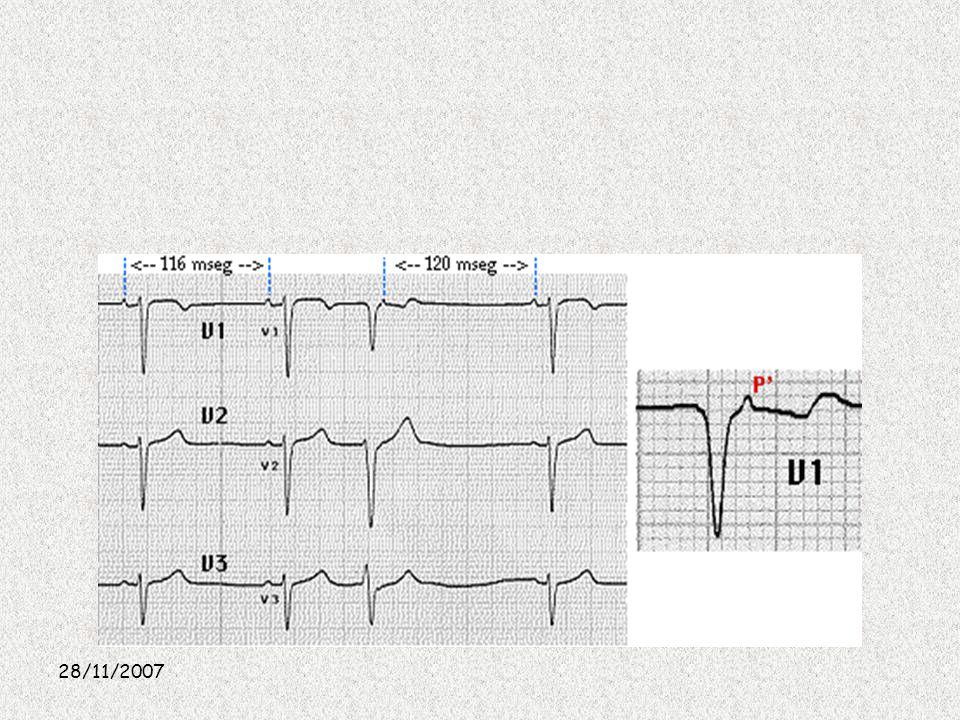 Otra imagen es Impulsos prematuros de la unión auriculoventricular Son latidos prematuros con la morfología ya descrita (la onda P retrógrada puede preceder, seguir o estar incluida en el complejo QRS). Suelen tener una morfología similar a la de los latidos sinusales, aunque pueden presentar pequeñas variaciones debidas a la presencia de una alteración en la conducción intraventricular.