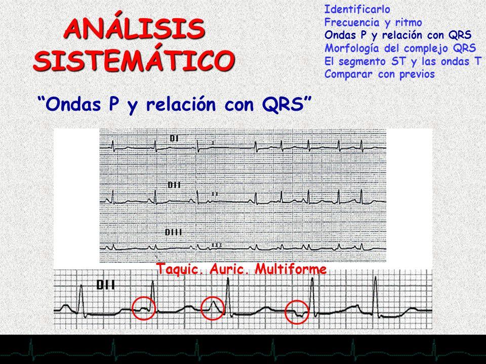 ANÁLISIS SISTEMÁTICO Ondas P y relación con QRS