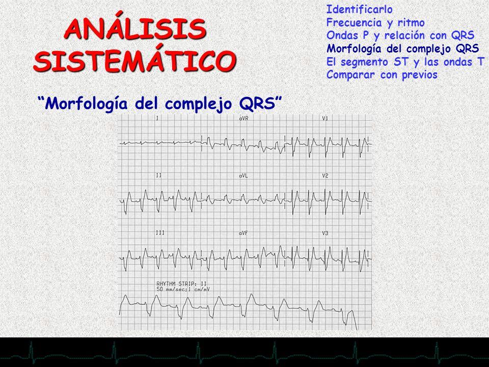 ANÁLISIS SISTEMÁTICO < 0,12 Morfología del complejo QRS