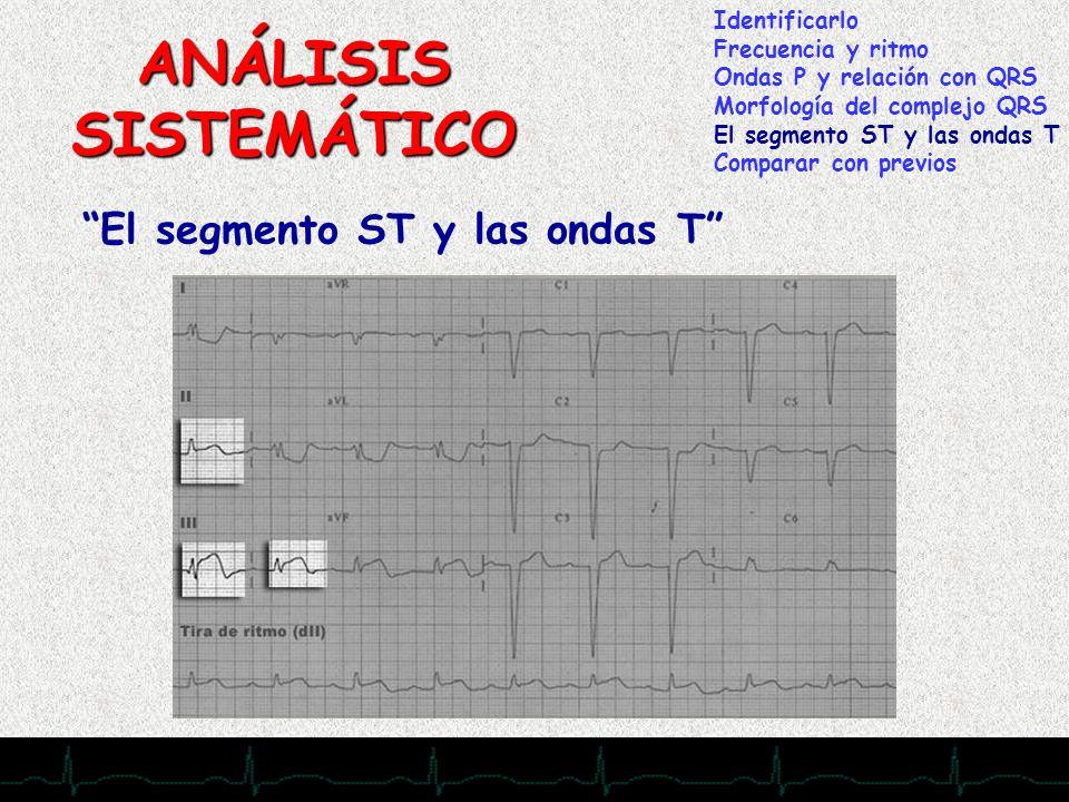 ANÁLISIS SISTEMÁTICO El segmento ST y las ondas T Identificarlo