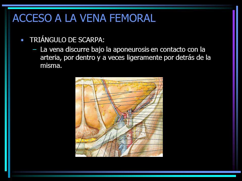 ACCESO A LA VENA FEMORAL