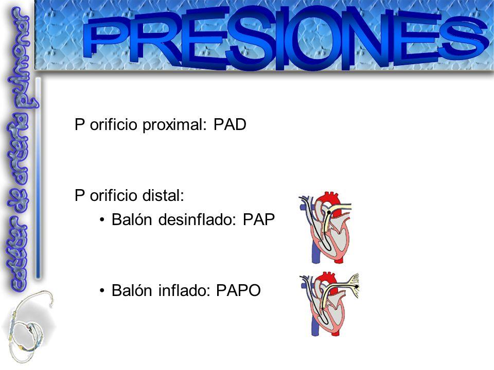PRESIONES P orificio proximal: PAD P orificio distal: