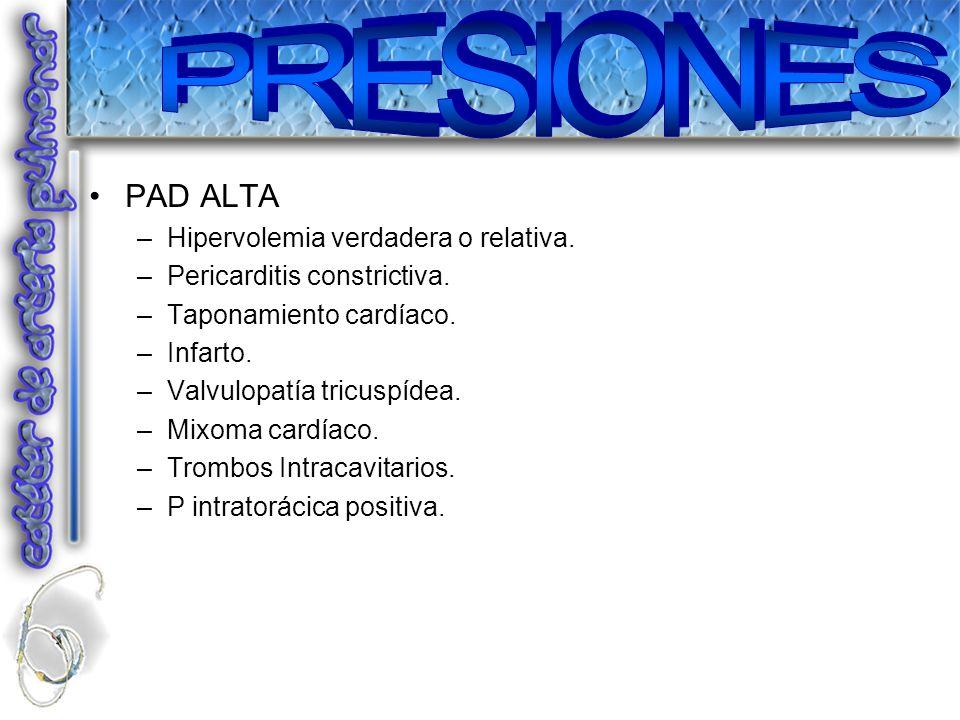 PRESIONES PAD ALTA Hipervolemia verdadera o relativa.