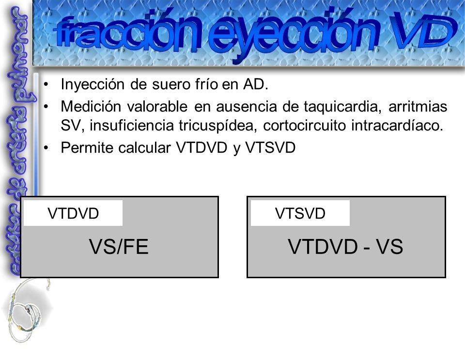 fracción eyección VD VS/FE VTDVD - VS Inyección de suero frío en AD.